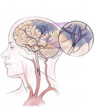 bloedklonter hersenen symptomen
